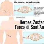 Il Fuoco di Sant'Antonio o Herpes Zoster